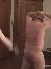 Poor slave got his body badly wounded by his Mistress